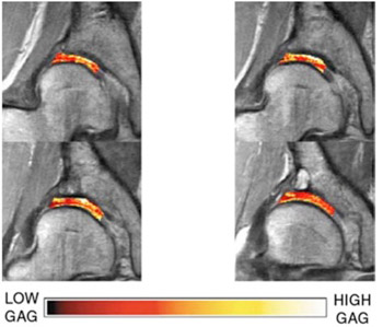 MRI dGEMRIC Evaluation of Cartilage