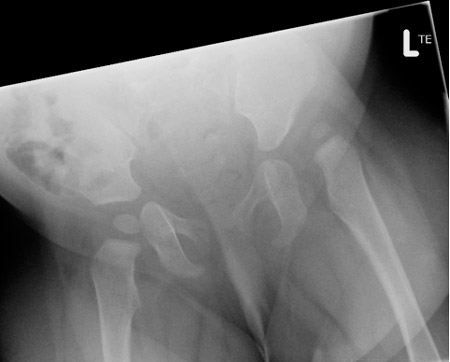 Dislocated hip diagnosed at 14 months requiring surgery